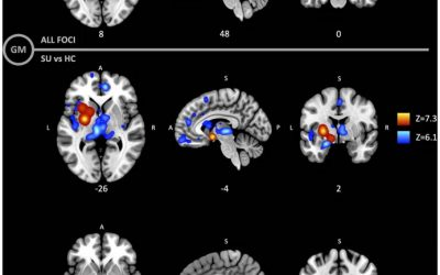 Gray and white matter morphology in substance use disorders: a neuroimaging systematic review and meta-analysis