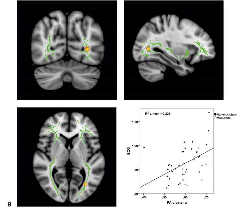 Audiovisual structural connectivity in musicians and non-musicians: a cortical thickness and diffusion tensor imaging study