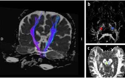 Imagen del tensor de difusión de la vía corticoespinal y su asociación con el pronóstico del infarto cerebral agudo: experiencia de una cohorte en México